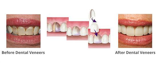 Veneers Mildura Dentist