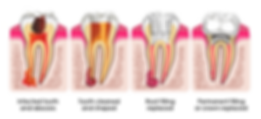 Root Canal Mildura Dentist
