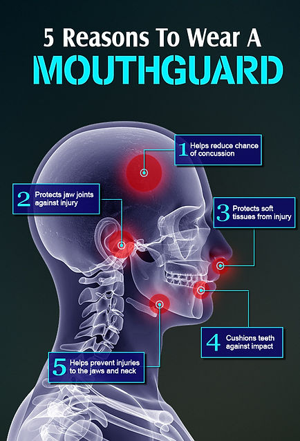 Mouthguards Mildura Dentist