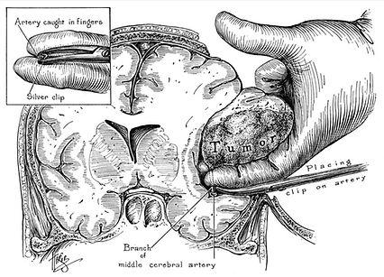 neurocirurgia do seculo passado retirando tumor cerebral com o dedo