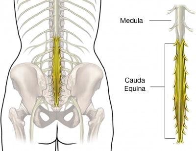 Cauda equina coluna lombar