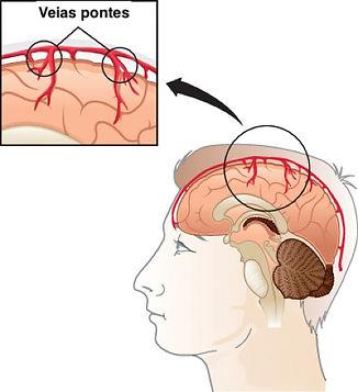 Desenho das veias ponte do cérebro