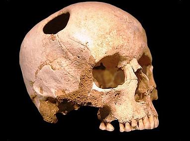 Orificio cicatrizado em cranio pre histo