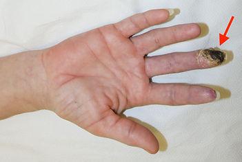 necrose de dedo apos infiltraçao na sindrome do tunel do carpo