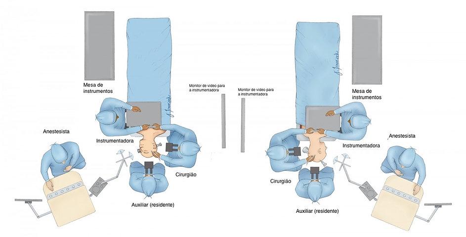 Disposiçao dos membros da equipe e equipamentos na sala de cirurgia