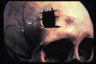 Trefina neurocirurgia historia 3.jpg