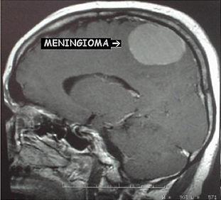 Ressonacia magnetica de meningioma cerebral