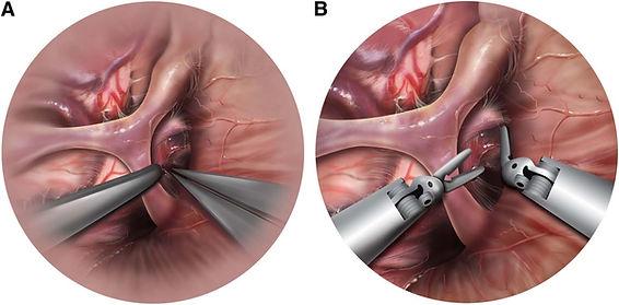 imagem de cirurgia cerebral pelo microscopio