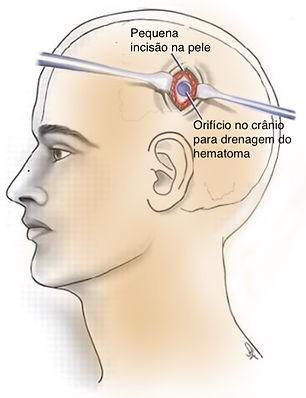 Cirurgia de trepanação para hematoma subdural crônico