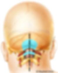 osso retirado na cirurgia de chiari