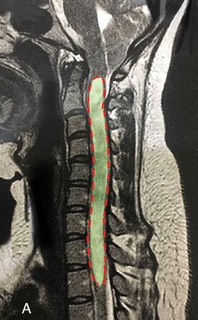 Seringomielia cervical ressonanca magnetica