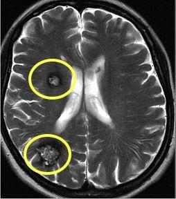 ressonancia magnetica de cavernomas cerebrais multiplos