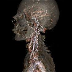tomografia tc de cranio gif