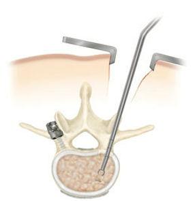 Microcirurgia de coluna vertebral com microscopio