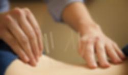 Agulhas de acupuntura para tratamento de hénia de disco