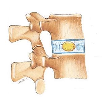 disco intervertebral normal