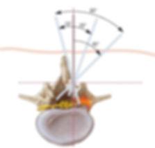 campo de visao do neurocirurgiao em  cirurgia de coluna com microscopio