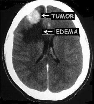 Meningioma cerebral com edema