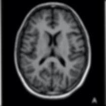 Ressonância magnética do cérebro normal
