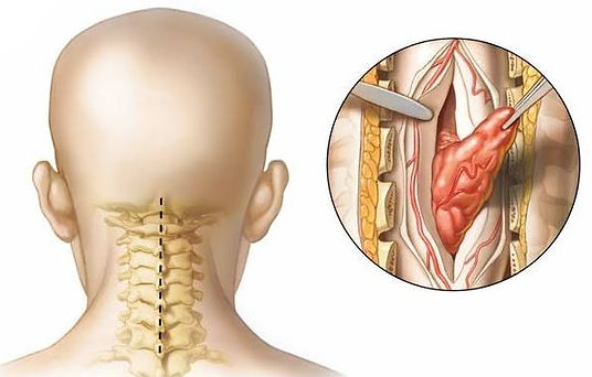 Cirurgia para tumor medular na coluna ce