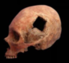 Trefina neurocirurgia historia 1.jpg
