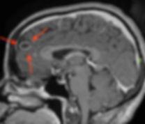 meningioma cistico