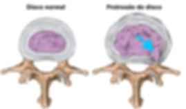 disco normal e protrusao discal