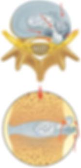hernia de disco atraves do anulo fibroso