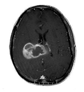 Ressonancia magnetica de glioblastoma multiforem (gbm) cerebral
