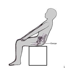 Dor no cóccix - postura ao assentar para alivio da dor no coccix