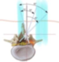 Campo de visão reduzido nas cirurgias minimamente invasivas