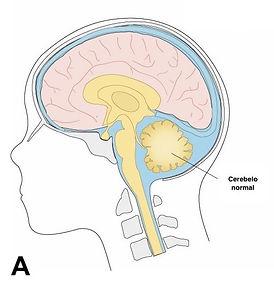 chiari tipo 2 cerebelo normal.jpeg