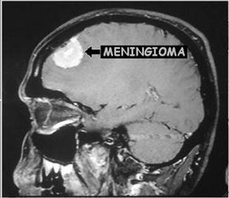 RM de meningioma cerebral