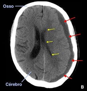 Tomografia computadorizada do hematoma subdural crônico