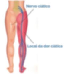 Nervo ciatico dor