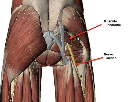 musculo piriforme e nervo ciatico.jpg