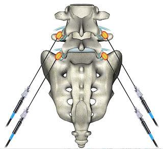 Locas na coluna lombar onde estão os nervos onde é feita a Rizotomia percutânea por radiofrequência para tratamento da hérnia de disco