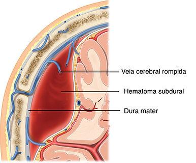 Veia cerebral rompida com sangramento e hematoma subdural crônico