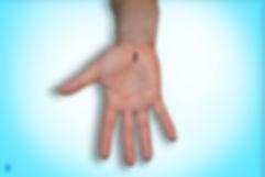 incisao e sutura na cirurgia para sindrome do tunel do carpo