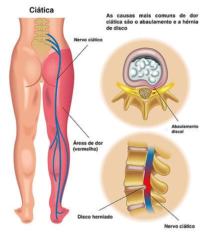 Hernia de disco lombar - desenho