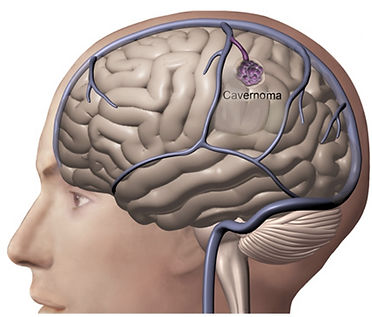Desenho de um cavernoma cerebral