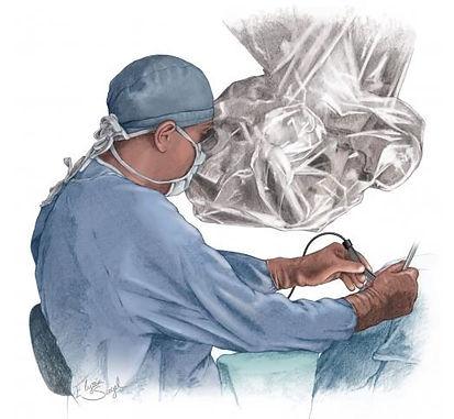 Postura de conforto do neurocirurgião com o microscópio durante a cirurgia