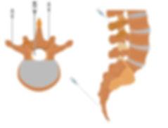 Dor no cóccix - tecnicas de infiltraçao da coluna lombar e do coccix