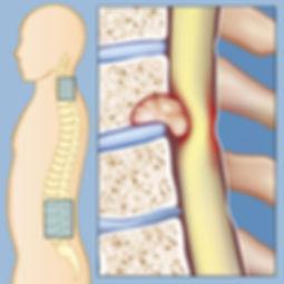 tumor na coluna.jpg