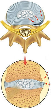 laceraçao do anulo fibroso na hernia de disco
