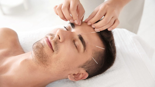 Benefits-of-Acupuncture.jpg