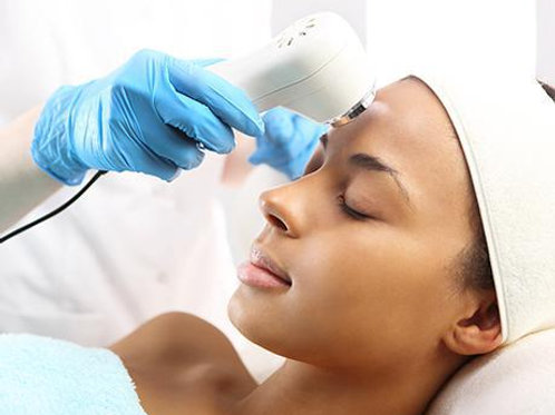 C02 Fractional Laser Resurfacing Treatment