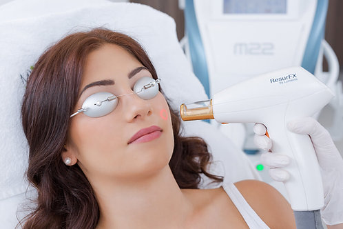 ResurFX Laser Single Treatment