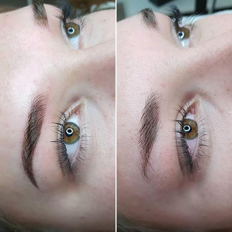 1st treatment 👸_These overtweezed eyebr