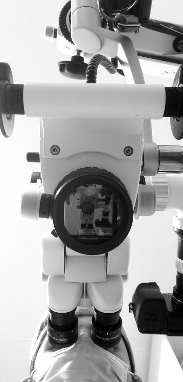 microscopio dental endodoncia tijuana .j